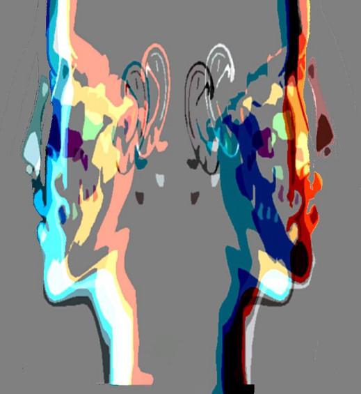 Formation Rééducation Douleurs des ATM, Limitation de l'ouverture buccale, Mouvements mandibulaires après une chirurgie osseuse de la face ou une chirurgie linguale